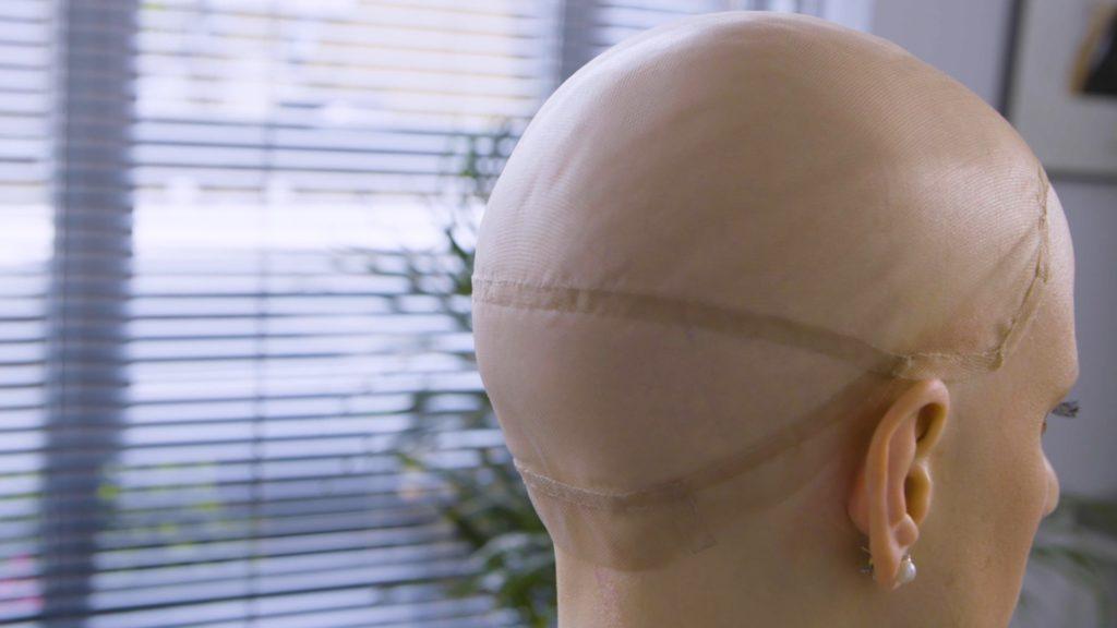 Alopeica Wigs Patient